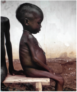 The West was horrified in 1968 by images of starving Biafran children such as this one. Biafra's attempts to secede from Nigeria led to a civil war that displaced millions and killed two million more.  (Photo: Dr. Lyle Conrad)
