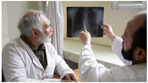 Doctors in a TB hospital in Afghanistan analyze some test results. TB has become a more pressing problem as COVID concerns have overtaken efforts to curb it. (Photo: un photo )